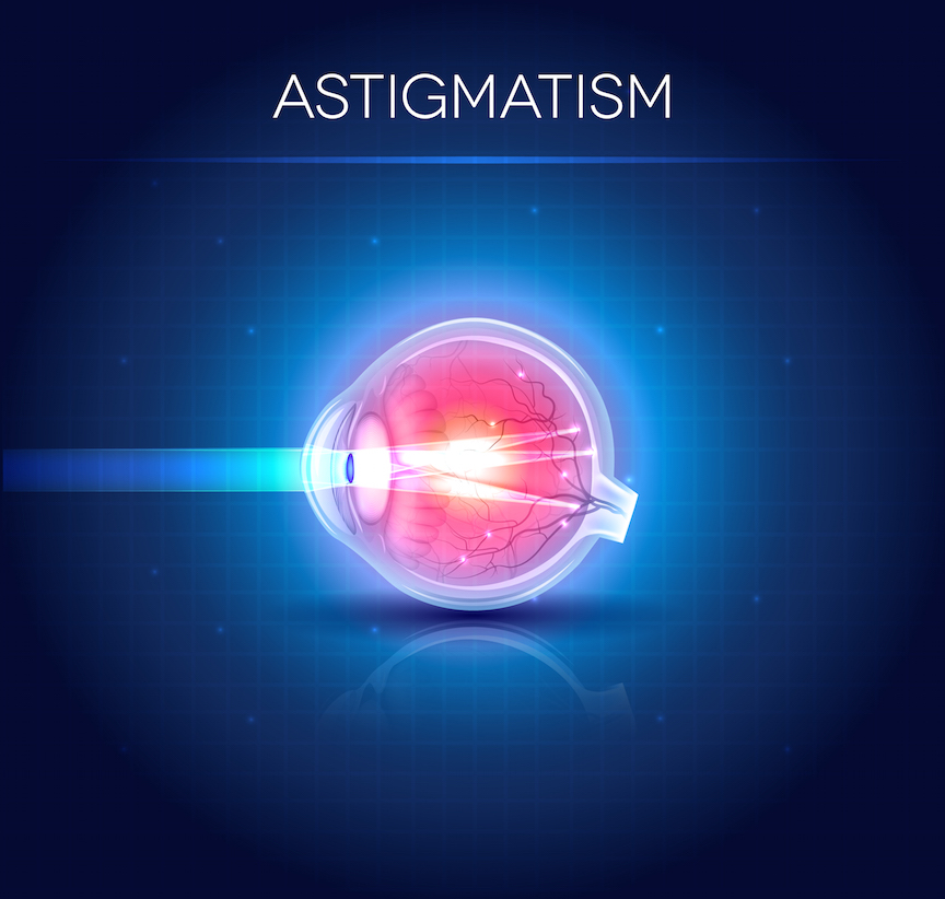 Astigmatism refraction