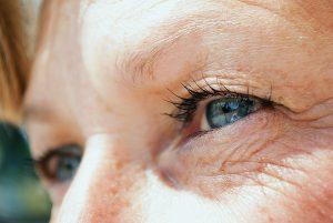 Diabetic eyes