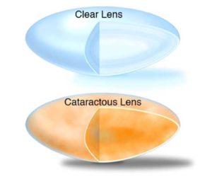 Cataract vs Clear Lens