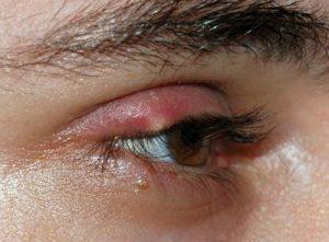 Stye on an eye lid