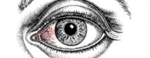 pinguecula surfers eye